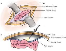 hernia mesh and hernia repair a review