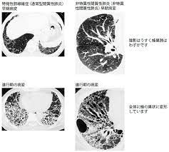乾湿 性 肺炎