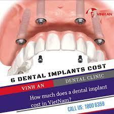 list 2020 dental implant costs