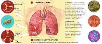 туберкулез фото картинки