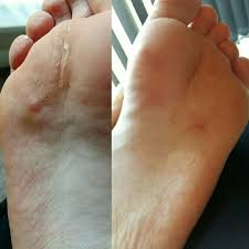 Anyone else suffer with really itchy feet an toes an have little ...