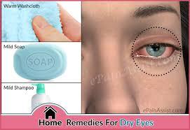 Dry irritated eyes home remedies