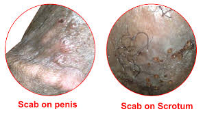 Scab on Penis - Peeling, Bleeding, Pus Discharge | Chafing, Friction ...