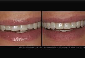 teeth reshaping. picture of enamel reshaping teeth