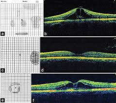 Types Of Amsler Grid Chart Resurrection Of The Amsler Chart In Macular Diseases Nassar