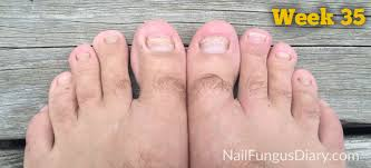 nail fungus toenails week35b