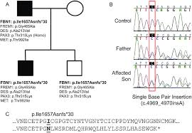 Cdh In A Family With Marfan Syndrome A Pedigree Showing
