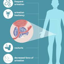 Patients may experience increased frequency and urgency of urination, pain with urination, or urinary incontinence. Prostate Cancer Signs Symptoms And Complications