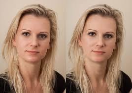 before and after using the byro method