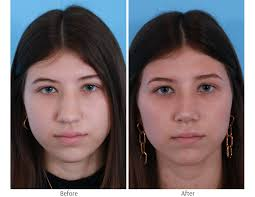 What health insurance doesn't cover. Rhinoplasty Chicago Dr George Moynihan Nose Job