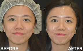 acne scar removal discovery pico before after 1