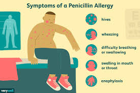 Allergic Reaction Chart Children And Penicillin Allergic Reactions