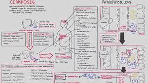 Pathophysiology Of Liver Cirrhosis In Flow Chart Liver Cirrhosis Sands Pathophysiology Investigations Management