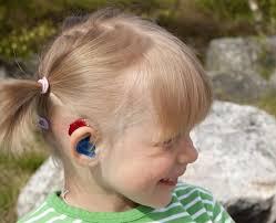 Hearing Impairment Degree Of A Hearing Impairment Kuuloavain Fi
