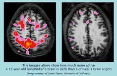 Years Best Health Psicologia Images Other The And 45 Brain Drug Alcohol After Abuses Brain Of