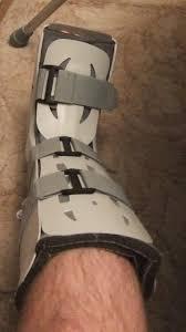 Leg Wikipedia Walking Boot Wikipedia