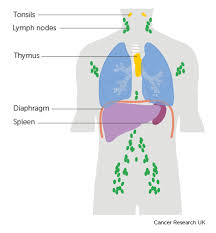 Stages Of Non Hodgkin Lymphoma Non Hodgkin Lymphoma