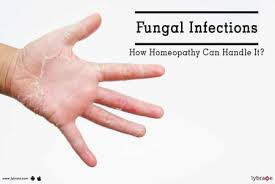 fungal infections how homeopathy can handle it