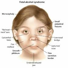 fetal alcohol syndrome note ntd occur but no low ear  fetal alcohol syndrome note 1 ntd occur