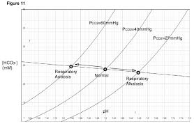 Respiratory Metabolic Acidosis Alkalosis Chart Respiratory Alkalosis Wikipedia