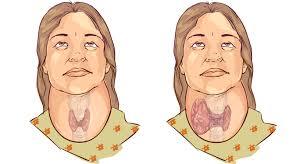 Infectiile urinare: cauze, simptome, tratament - farmacia