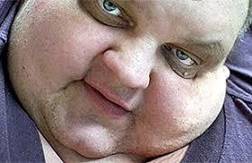 Resultado de imagen de fotos obesos
