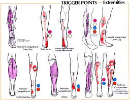 Trigger Point Referral Patterns Balance In Motion Bodywork