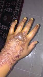 Nebezpečná Past Na Dovolenkáře Tetování Hennou Může Znetvořit Na