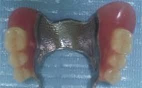 Proteza dentara scheletata superioara