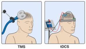 Compare Brain Stimulation Techniques And Applications