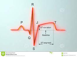 Ecg Chart Labeled Ecg In Myocardial Infarction Illustration Showing St