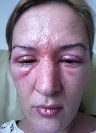 eyelash curler gone wrong. jane rolfe woke up the next morning with severely irritated, stinging and bloodshot eyes eyelash curler gone wrong