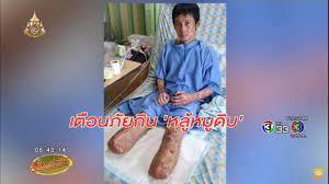 หนุ่มเตือนภัย! กิน 'หลู้หมูดิบ' ทำติดเชื้อในกระแสเลือด ต้องตัดขา 2 ข้างทิ้ง  - YouTube
