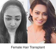 trusted best hair transplant in india