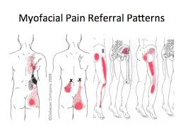 Pain Referral Patterns Extraordinary The Referral Patterns Of The Sacroiliac Joint Facet Joints And