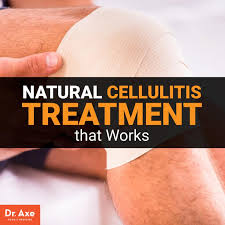 cellulitis treatment dr axe