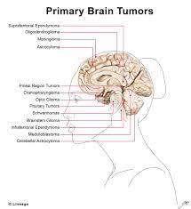 Primary Brain Tumors Oncology Medbullets Step 1
