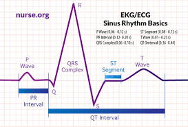 Ecg Chart Examples How To Read An Electrocardiogram Ekg Ecg Nurse Org