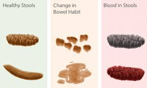 Poo Chart Reveals Whats Normal And What Could Be A Warning