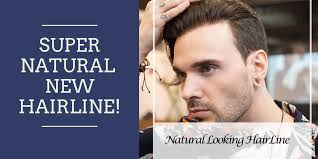 Hair Line Design Transplant Creating A Natural Hairline With Hair Transplant Surgery