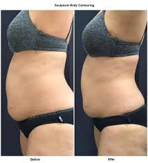 Contour Light Body Sculpting Before And After Sculpsure Sydney Body Contouring Remove Fat Safely