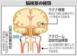 心 原 性 脳 塞栓 症