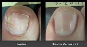 we seattle toenail fungus treatment