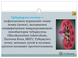 Презентация на тему ВЫПОЛНИЛА БАЗАНОВА Ф ГРУППА  2 Туберкулез