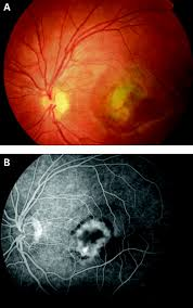 Choroidal Neovascularisation In Children | British Journal Of ...