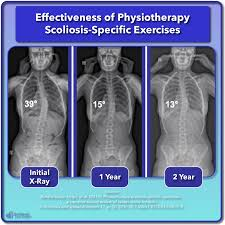 Scoliosis Degrees Of Curvature Chart Scoliosis Treatment For Children And Teens Scoliosis Care