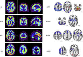 multiple system atrophy an overview