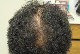 biotin use in hair disorders