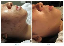 acne scar treatment orlando