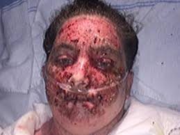 Eczema Treatment Gone Wrong: Woman Burns 98% Of Body After Soaking ...